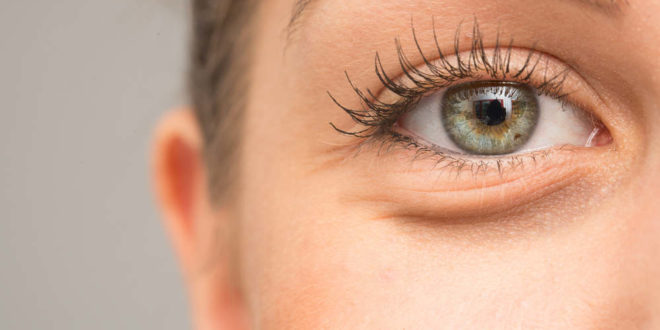 Occhiaie : da cosa sono causate e come eliminarle